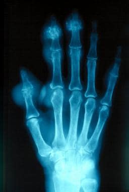 Gout. Plain radiograph showing chronic tophaceous