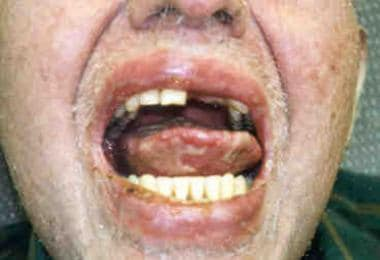 Oral mucosal changes in a patient with chronic gra