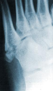 Radiograph of the left foot. This image depicts a