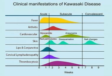 Clinical manifestations and time course of Kawasak