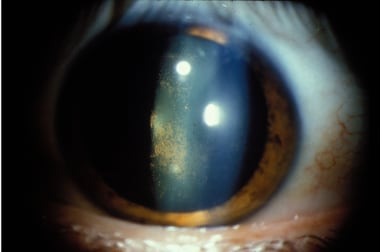 Pigment deposits on anterior lens surface.