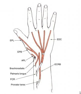 Tendon transfer for high radial nerve palsy. The p