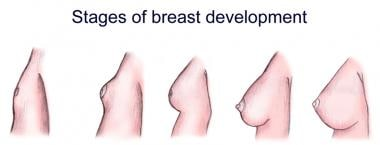 Stages of breast development.
