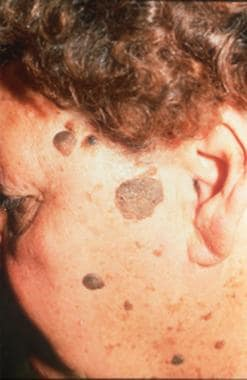 Benign Skin Lesions: Overview, Defining the Lesion, Papules and Plaques