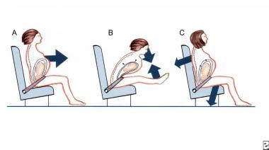 Correct use of seat belts in pregnancy.