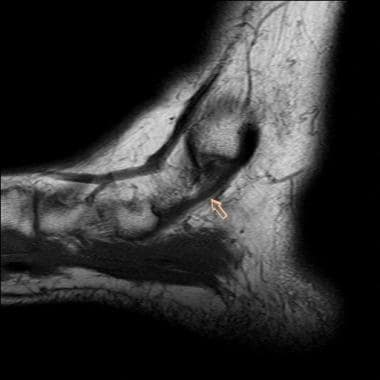 Ankle, tibialis posterior tendon injuries. Sagitta
