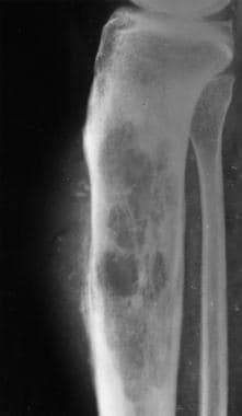 A 57-year-old woman with knee pain. Lateral radiog