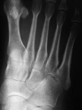 Fractured metatarsals. Image shows a thin layer of