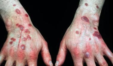 Plaques and papular lesions on the wrists and the