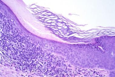 Hematoxylin and eosin-stained section, medium magn