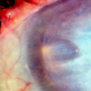 Close-up view of the limbal area of the same patie