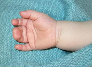 Palmar view of hand of 1-year-old child with compl