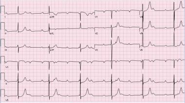 Complete heart block with escaped junctional rhyth