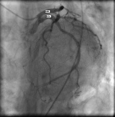Coronary angiography showing separate origin of th
