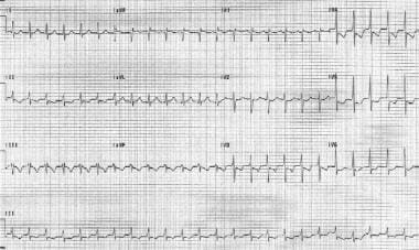 Atrial tachycardia. The patient's heart rate is 15