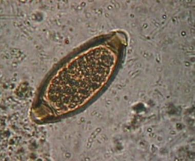 A typical Trichuris trichiura egg in feces.