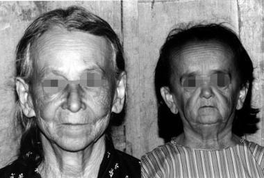A 50-year-old woman with GHRD (right) and her 75-y