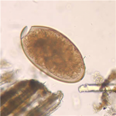 Fasciola hepatica egg in an unstained wet mount (