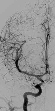 Initial cerebral angiogram from patient with subar