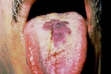 Oral Kaposi sarcoma in a patient with AIDS. Note t