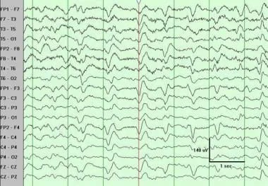Triphasic waves. Note the near continuous pattern