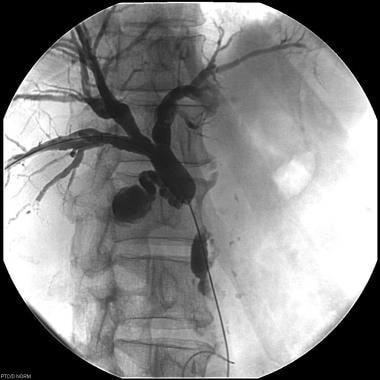 Obstruction of the common bile duct in a patient w