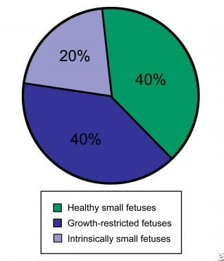 Fetal growth restriction. Distribution of small fe