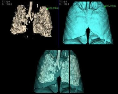 CT densitovolumetry in a heavy smoker with emphyse