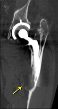 Image of the femoral component from a patient who