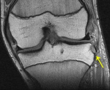 Segond fracture in a patient with an ACL tear. T1