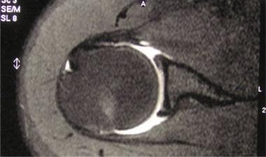 Magnetic resonance arthrogram: Axial view.