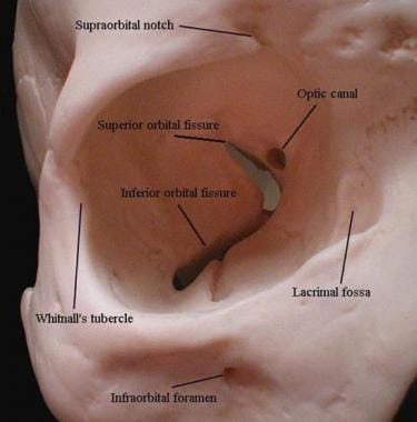 Orbit Anatomy: Osteology, Lacrimal System, Connective Tissue Planes
