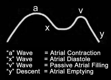 Right or left atrial pressure waveform.