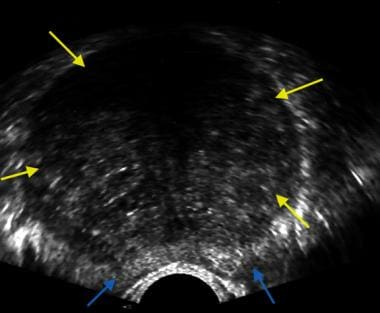Transverse image of the prostate showing a hypertr