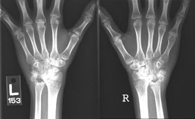Wrist radiographs of the patient with active polya
