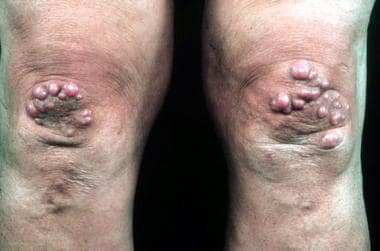 Nodular lesions on the knees of a patient with ery