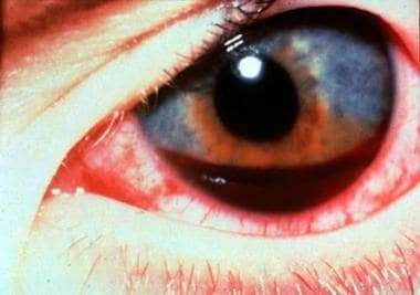 Hyphema. Deposition of RBCs in the anterior chambe