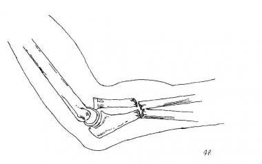 Bado type IV lesion.