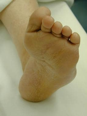 Varus foot deformity in patient with Charcot-Marie