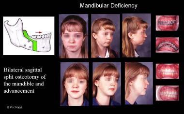Illustration of mandibular deficiency. The patient