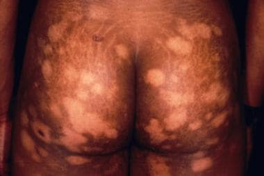 Hypopigmented cutaneous T-cell lymphoma. Courtesy