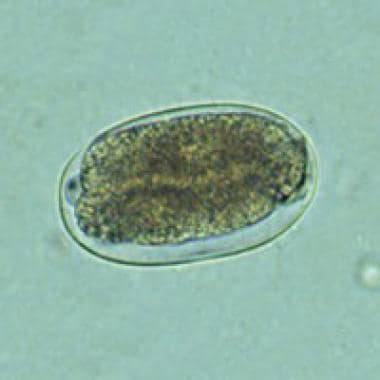 Hookworm eggs examined on wet mount. Eggs of Ancyl