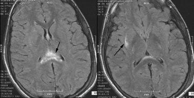 Closed Head Injury: Background, Pathophysiology, Epidemiology