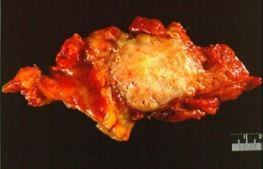 Pancreatic cancer. Gross section of an adenocarcin
