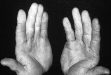 Photo of a patient with Raynaud phenomenon that re