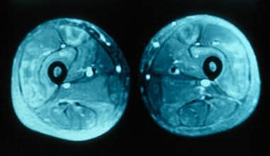 MRI of thighs showing increased signal in the quad