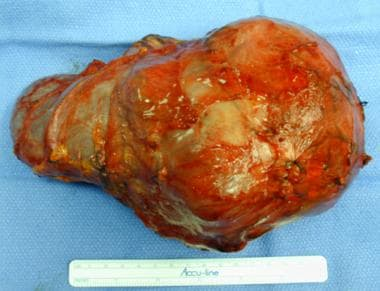 Renal tumor after surgical removal.