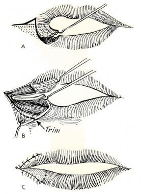 Commissuroplasty, as performed by Gillies and Mill