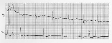 Prominent U waves after T waves in hypokalemia.