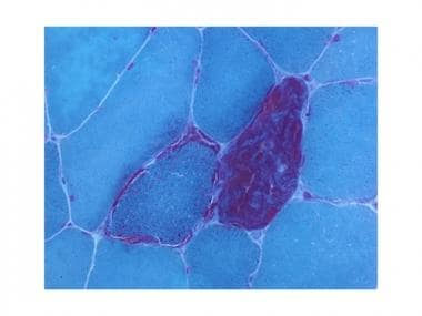Modified Gomori Trichrome stain showing ragged red
